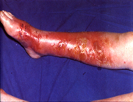 Staph cellulitis